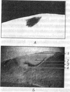 Визуально заметные изменения зубов при кариесе
