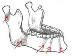 Перелом нижней челюсти - диагностика, лечение, симптомы перелома