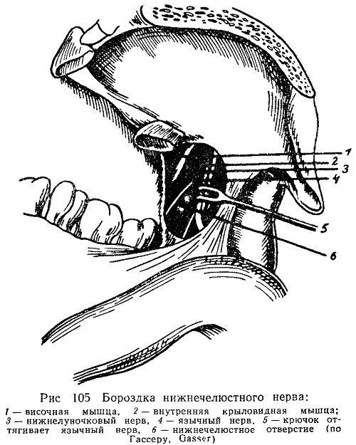 Мандибулярная и проводниковая анестезия нижней челюсти в стоматологии техника проведения с видео