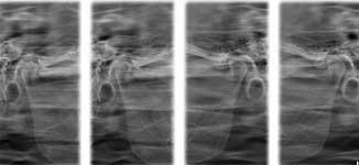 Субхондральный склероз суставных поверхностей при закрытом рте гимнастика бубновского для тазобедренного сустава видео скачать
