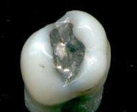 Пломбировочные материалы для лечения кариеса молочных зубов