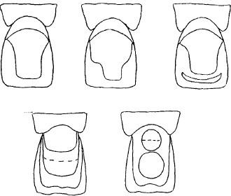 Реставрация фронтального вида зуба