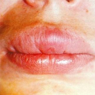 Почему опухло небо во рту: ? причины и лечение отека