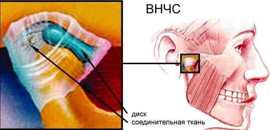 Вывих височно нижнечелюстного сустава лечение корнем лопуха суставов