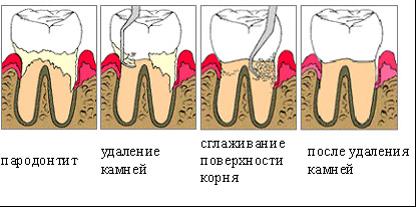 Пародонтит десен: симптомы и лечение в домашних условиях