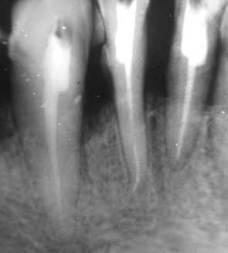 Деформации зубных рядов - Болезни ортопедической стоматологии