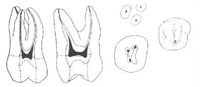 Сколько каналов в зубе - ПрофиМед