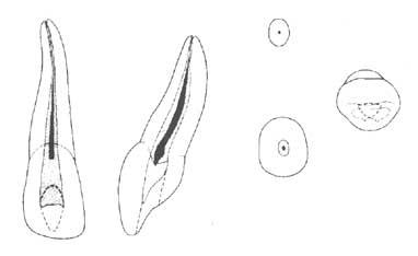 Количество корней и каналов зубов