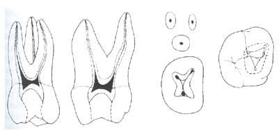 Сколько корней у 6 зуба сверху