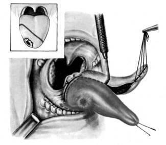 Лечение рака слизистой полости рта в Израиле: стоимость, отзывы, диагностика. Рак слизистой полости рта Израиль: цены, больницы, клиники