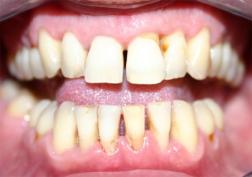 Пародонтит - Болезни терапевтической стоматологии