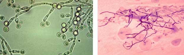 Кандидоз полости рта – лечение молочницы во рту